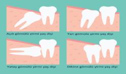 Trabzonda 20 Yaş Dişleri trabzon diş