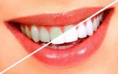 Diş beyazlatma işlemi, çeşitli nedenlerle renk değiştirmiş ve sararmış dişlerin rengini, kişiye özel birkaç ton açmak için uygulanan bir çözümdür.