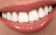 Porselen Lamina Dişler
